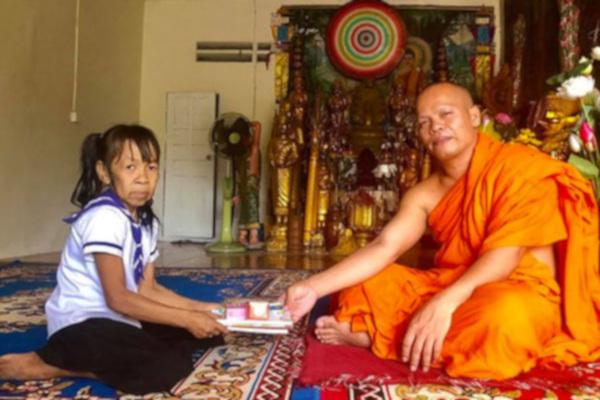 10-летняя девочка из Камбоджи из-за редкой болезни похожа на бабушку