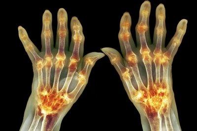 Ревматоидный артрит: Ученые нашли клетки, отвечающие за болезненные