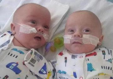 32-летняя британка родила самых маленьких близнецов в мире